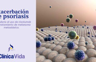 Exacerbación de psoriasis secundario al uso de nivolumab en el tratamiento de melanoma metastásico.