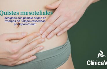 Quistes mesoteliales benignos con posible origen en trompas de Falopio resecados por laparotomía.